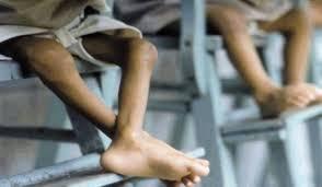 Mapani Venezuela / Informe Febrero – Marzo 2019: Desnutrición infantil de niños y niñas de 0 a 10 años
